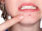 Как лечить розовые угри на лице