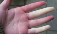 Онемение пальцев рук — причины и лечение