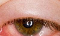 Как лечить отеки и воспаление глаз