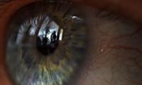 Покраснение глаз — лечение и причины появления
