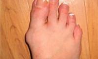 Шишки на ногах — как избавиться и как лечить