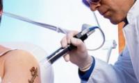 Выведение татуировок