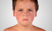 Симптомы краснухи у детей