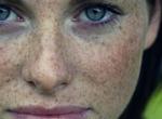 Как можно быстро избавиться от веснушек на лице навсегда