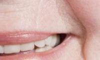 Морщины вокруг рта — как убрать и стать моложе