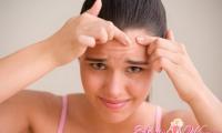 Как почистить лицо от черных точек