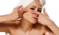 Как лечить угревую сыпь