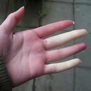 онемение пальцев на руках