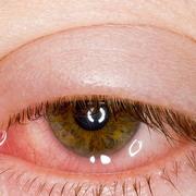 отеки и воспаление глаз