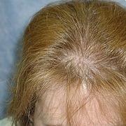 Как сделать тонкие волосы гуще и толще