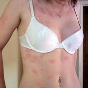 От оргазма красные пятна на груди