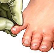 Грибок между пальцами ног