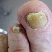 Утолщение ногтя на ноге